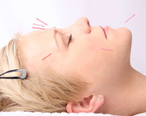 Cosmetic-Acupuncture1